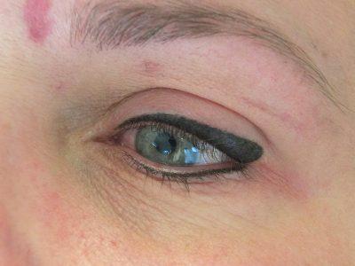 Alopecia eyliner
